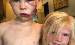 男孩为救妹妹被狗咬伤